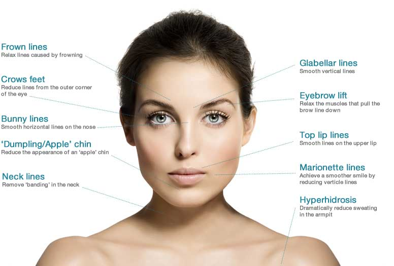 botox orange county california