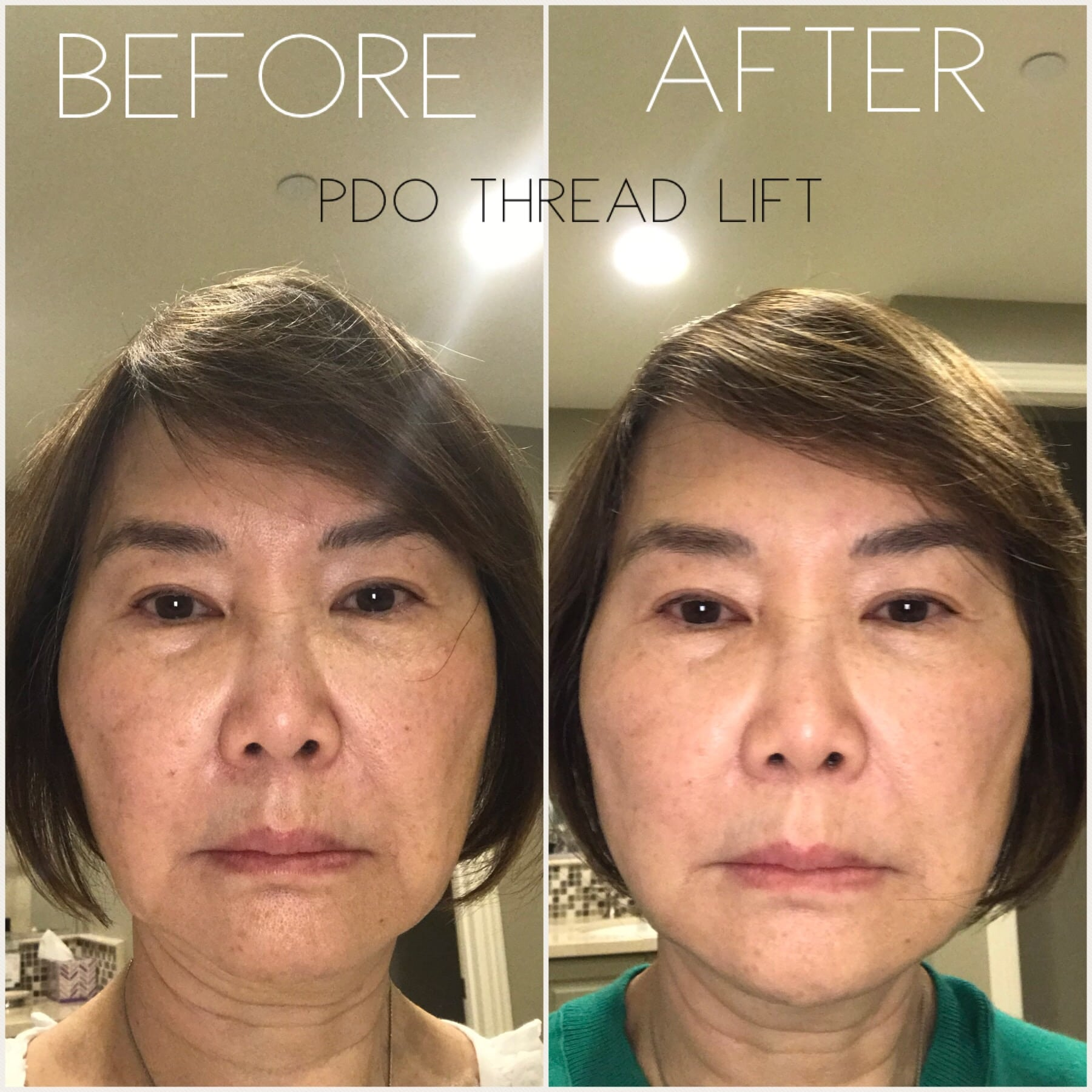 PDO Thread Lift – Nonsurgical Facelift with NovaThreads